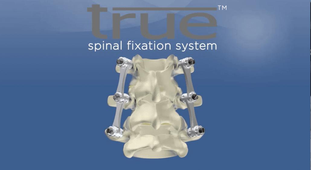 true-spinal-fixation-medical-device-min-1030x564-min