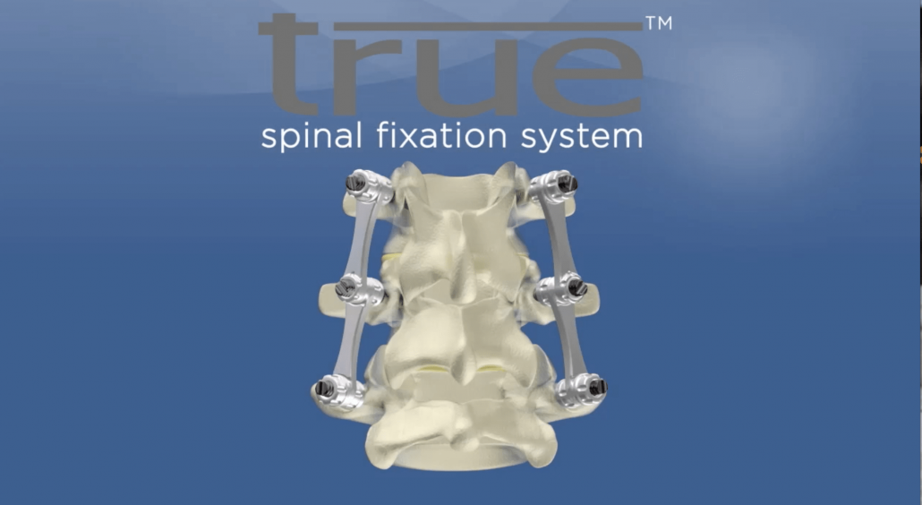 True Spinal Fixation System logo