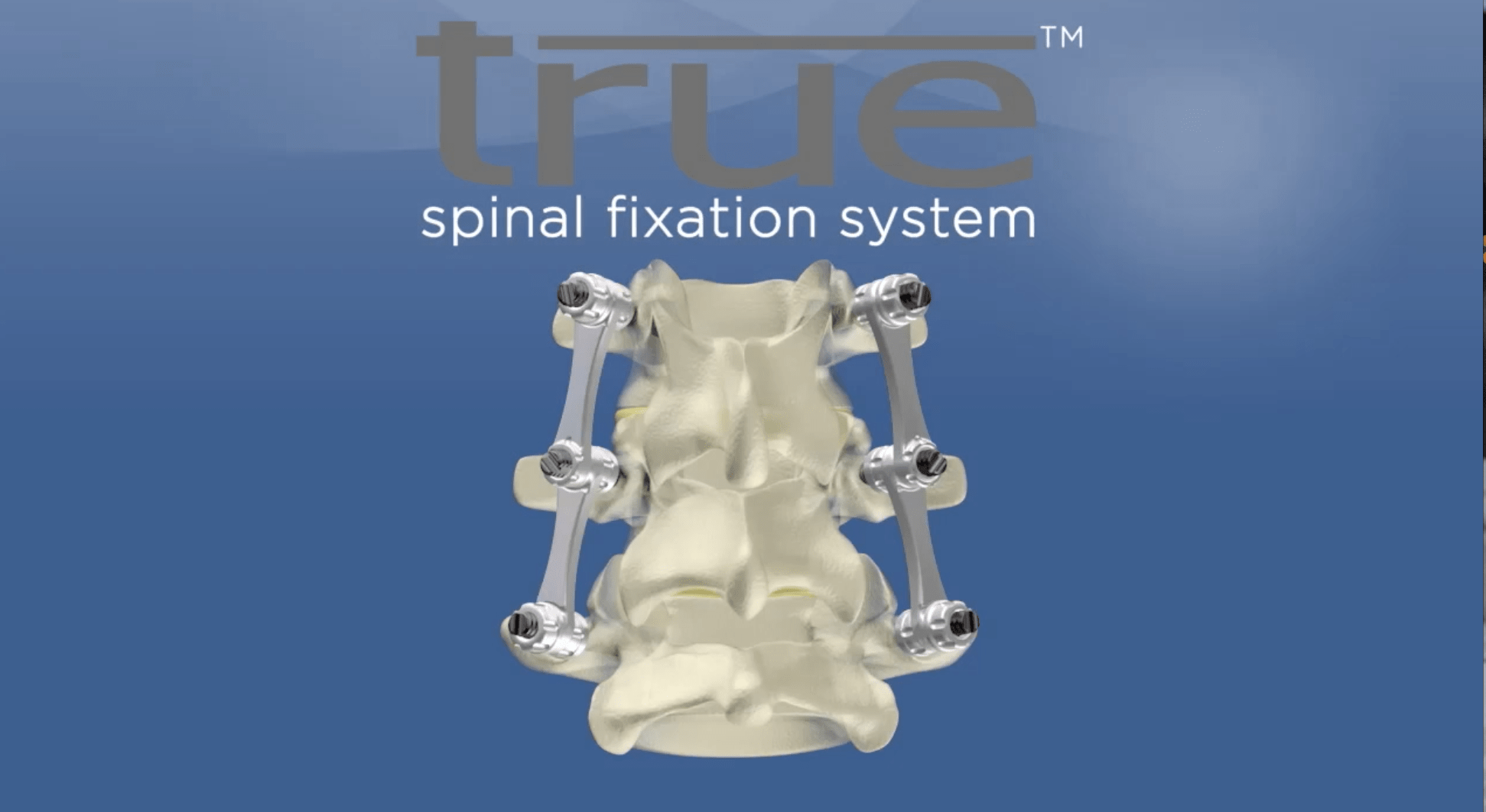 True Spinal Fixation System logo